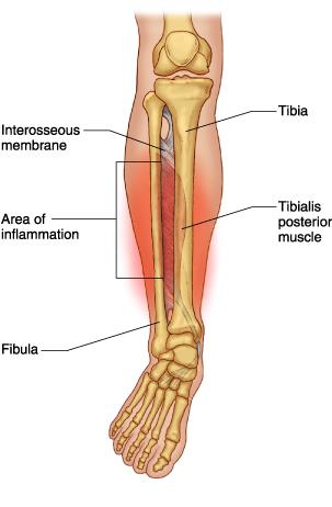 shin splints - fleet feet sports stuart, Human Body